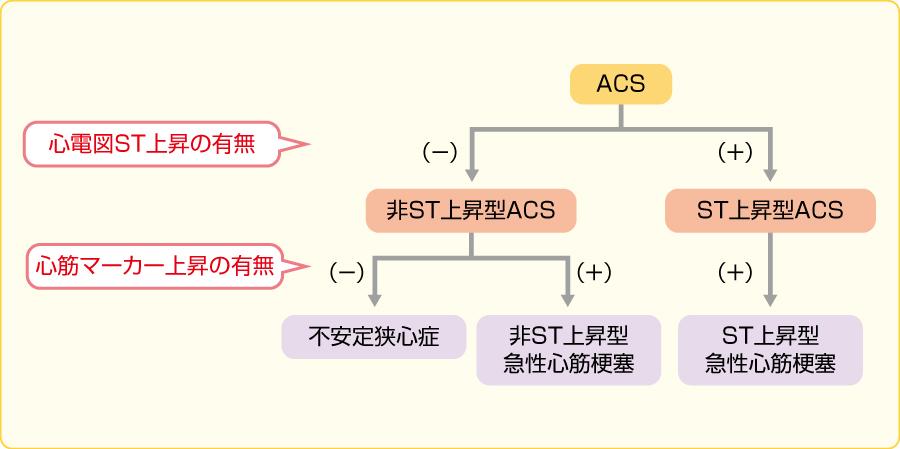 心電図によるACSの分類