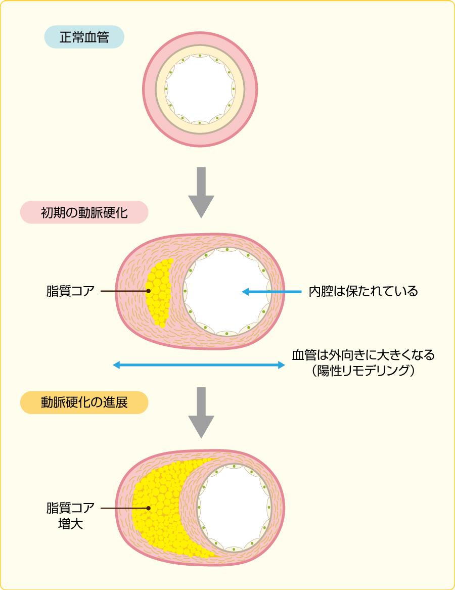動脈硬化の進展