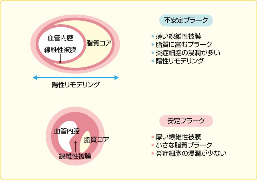 不安定プラークと安定プラークの特徴1