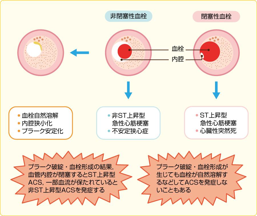 プラークの破綻・血栓形成