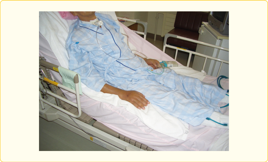 上前腸骨棘とベッドの背上げ屈曲点を確認
