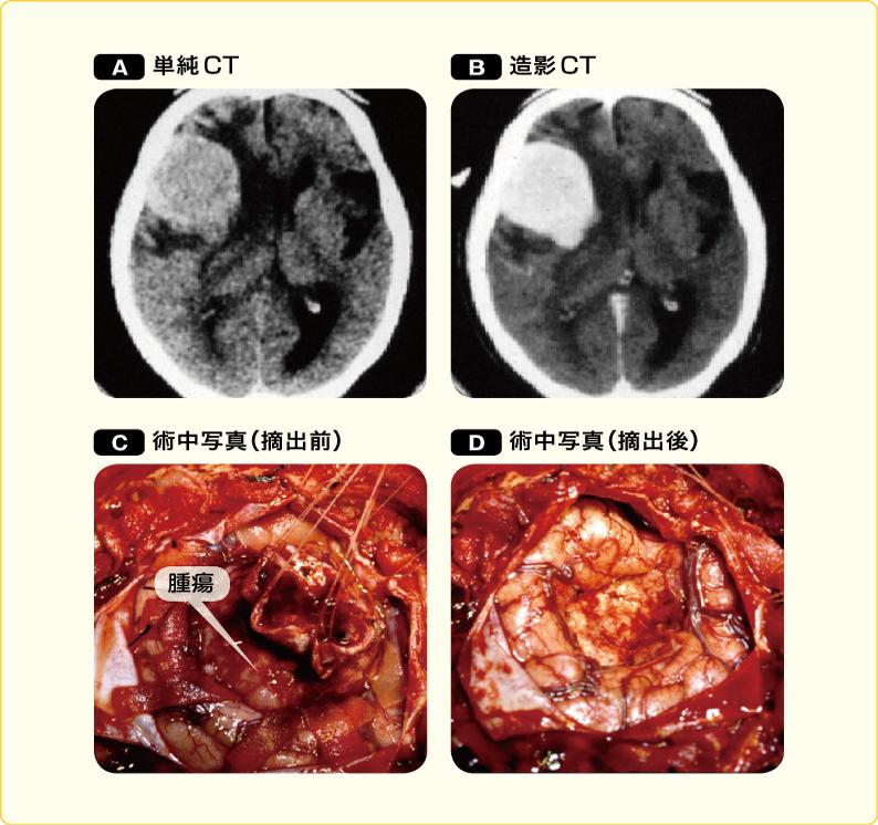 大脳表面の髄膜腫