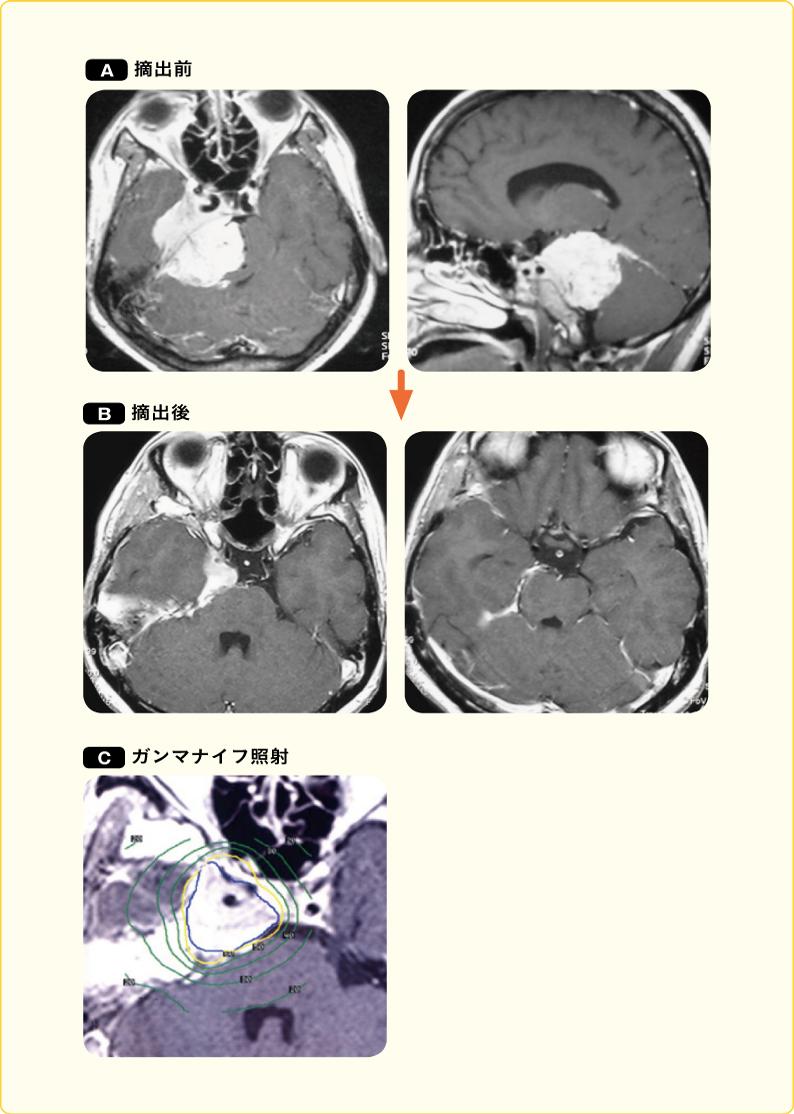 錐体斜台部髄膜腫