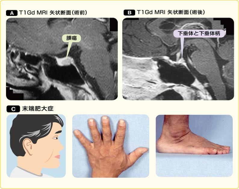 成長因子産生下垂体腺腫(術前後)と末端肥大症