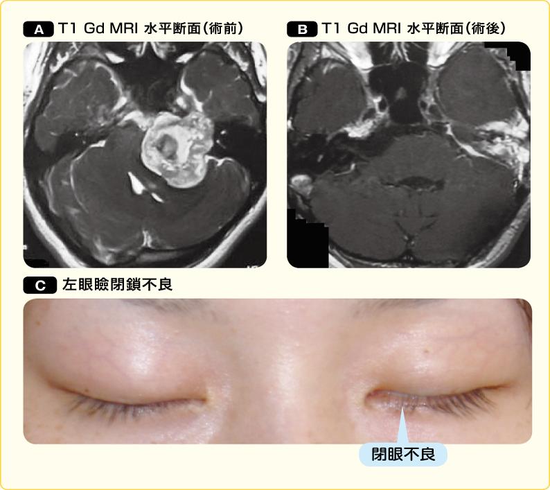 大きな聴神経腫瘍の術前後と顔面神経麻痺