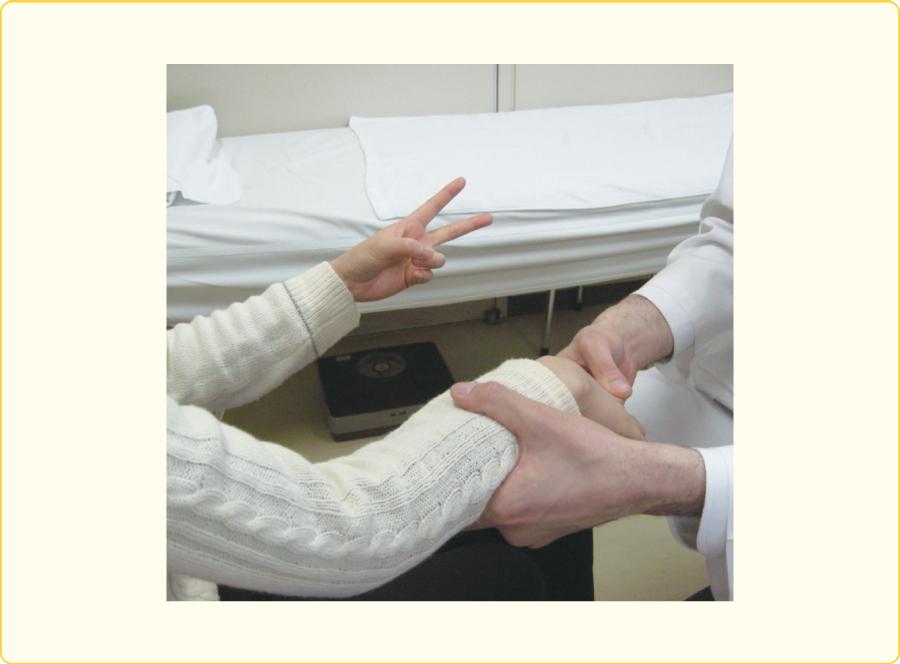 フロマンの手首の固化徴候