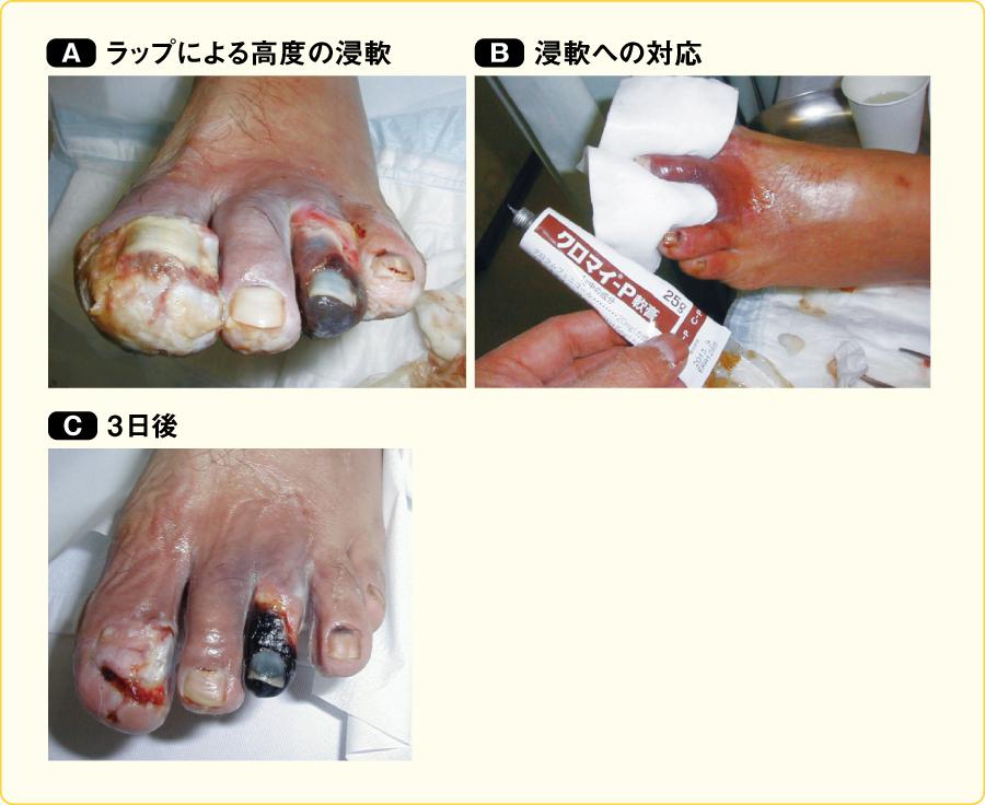 浸軟への対策(足指潰瘍)