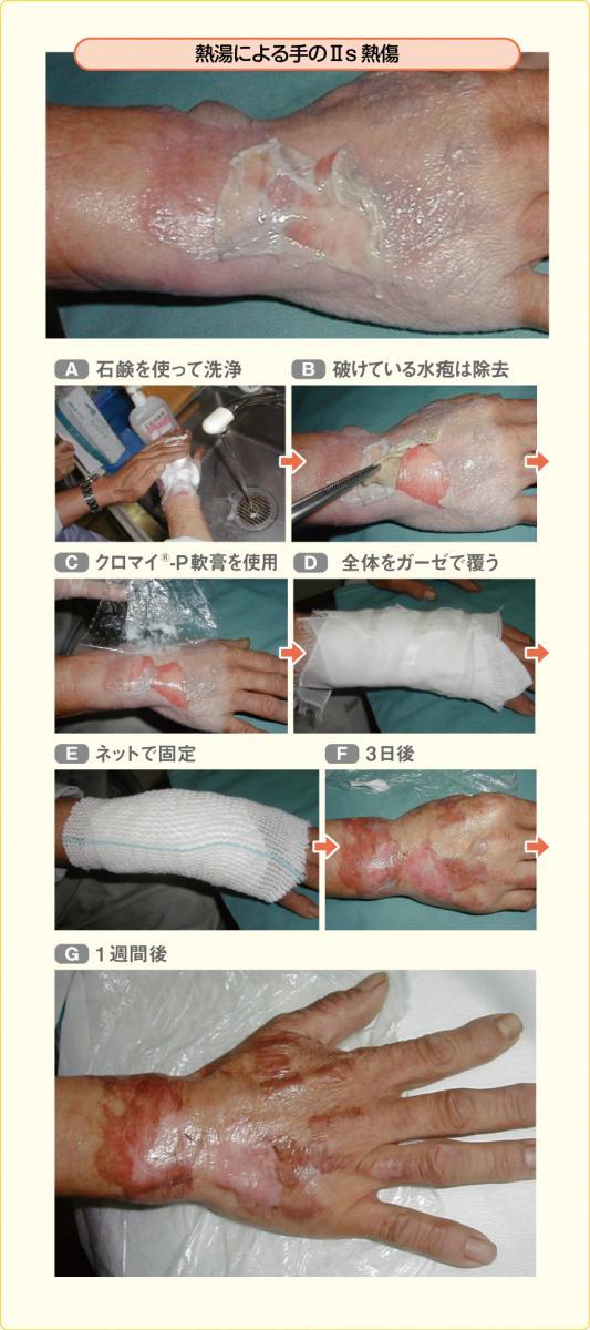 ラップ療法により治癒に向かった浅達性Ⅱ度熱傷の例