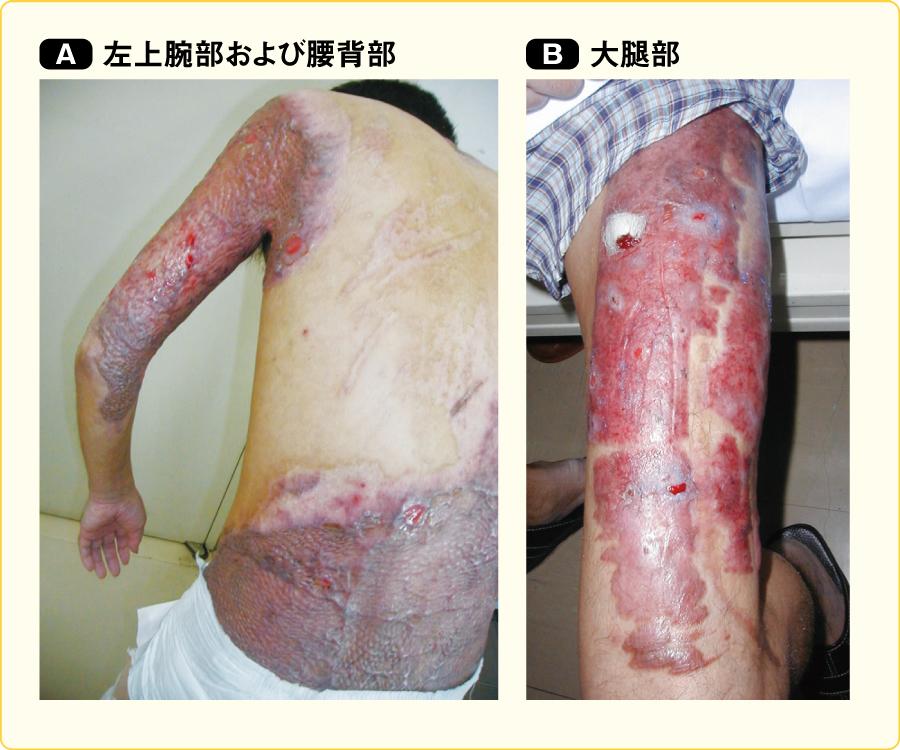 メッシュスキングラフトによる植皮の後遺症