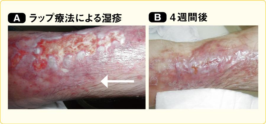 ラップ療法による湿疹に対して非固着性吸水ドレッシング材に変更した例