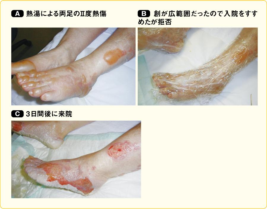 患者の理解不足により悪化した例(72歳の女性)