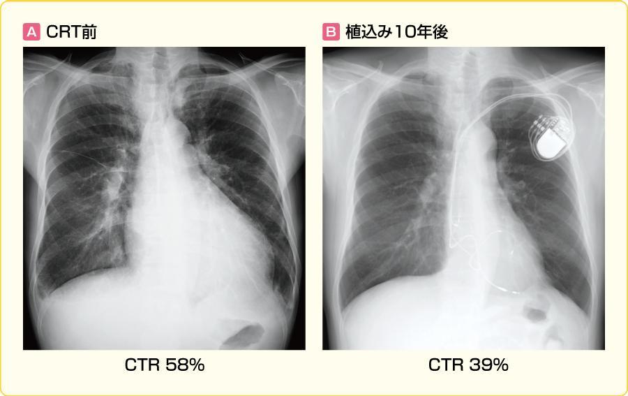 拡張型心筋症症例のCRT前後のX線写真