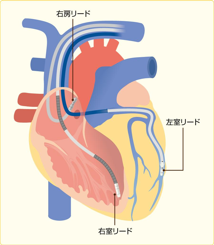 心臓再同期療法の方法