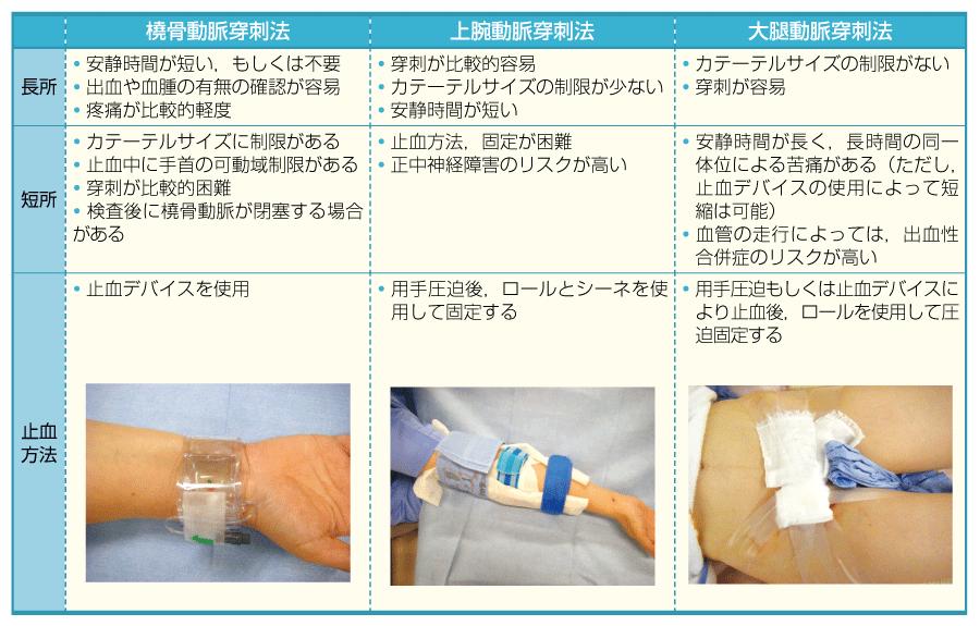 各穿刺法の特徴と止血方法