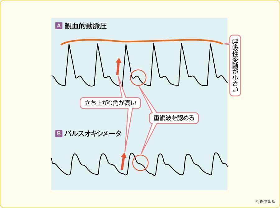 パルスオキシメータ・観血的動脈圧波形(正常時)