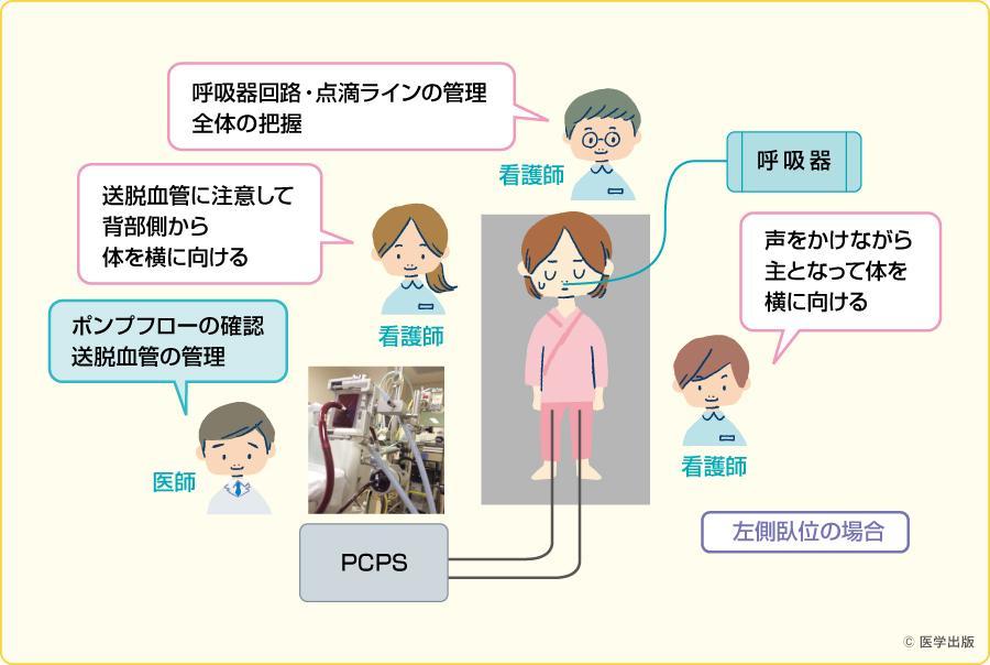 体位ドレナージの際の医療者の配置