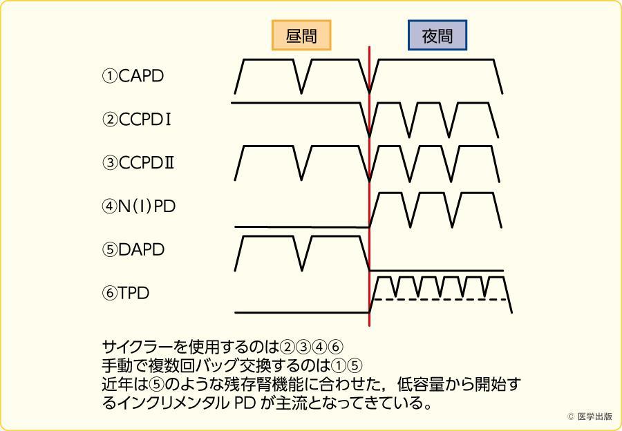PDの種類(治療方法での分類)