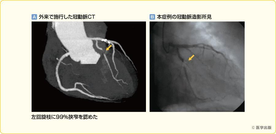 冠動脈CT(65歳男性,労作性狭心症の一例)