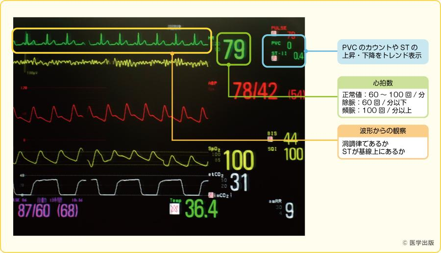 正常値の心電図