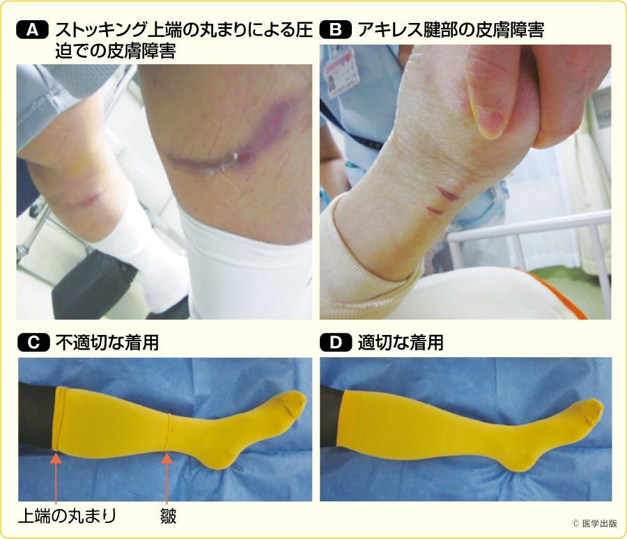 ストッキングの皺に一致した皮膚障害