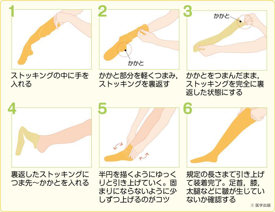 弾性ストッキングによる皮膚障害の予防と対策|看護roo![カン ...