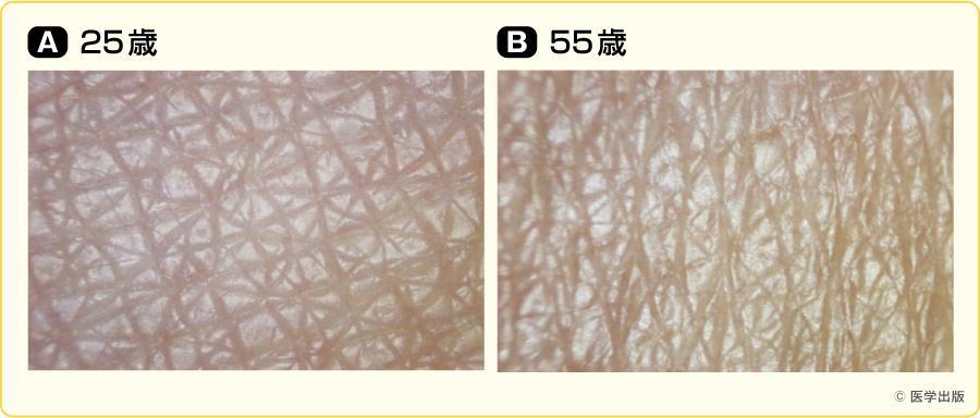 健常皮膚の年齢的変化(前腕)