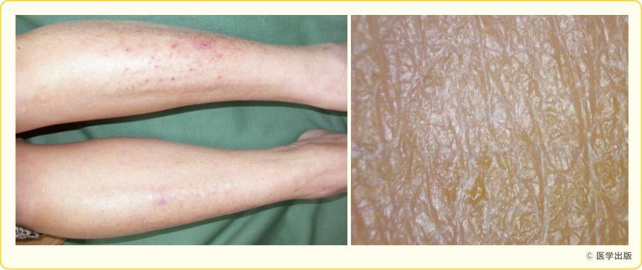 下腿皮脂欠乏性皮膚炎