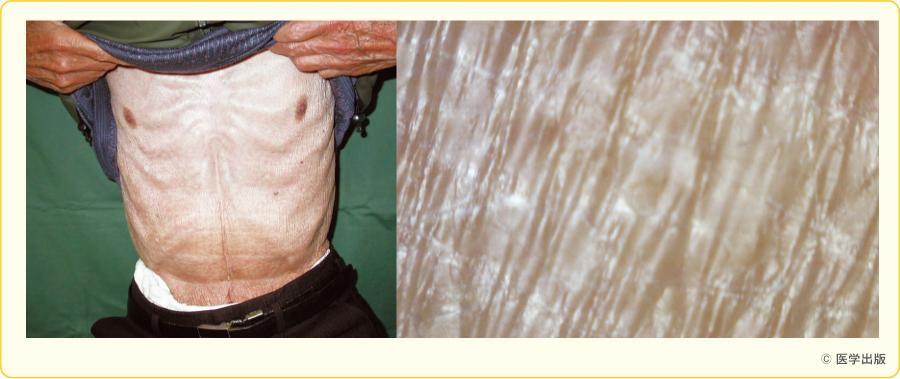 超高齢者乾皮症(90歳の男性)