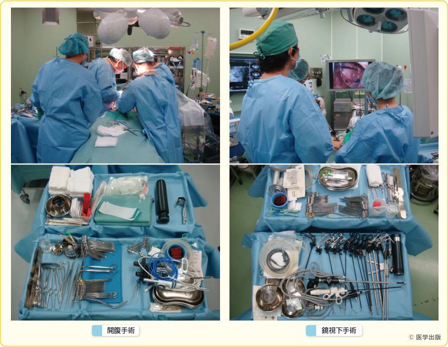 手術の今昔