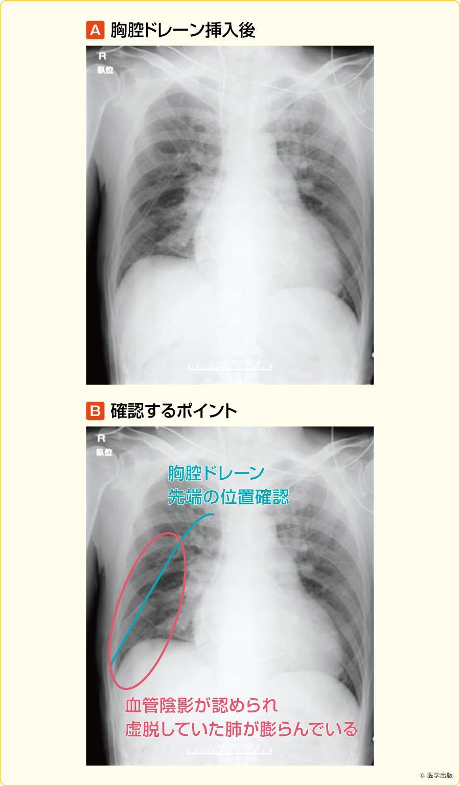 胸腔ドレーン挿入後