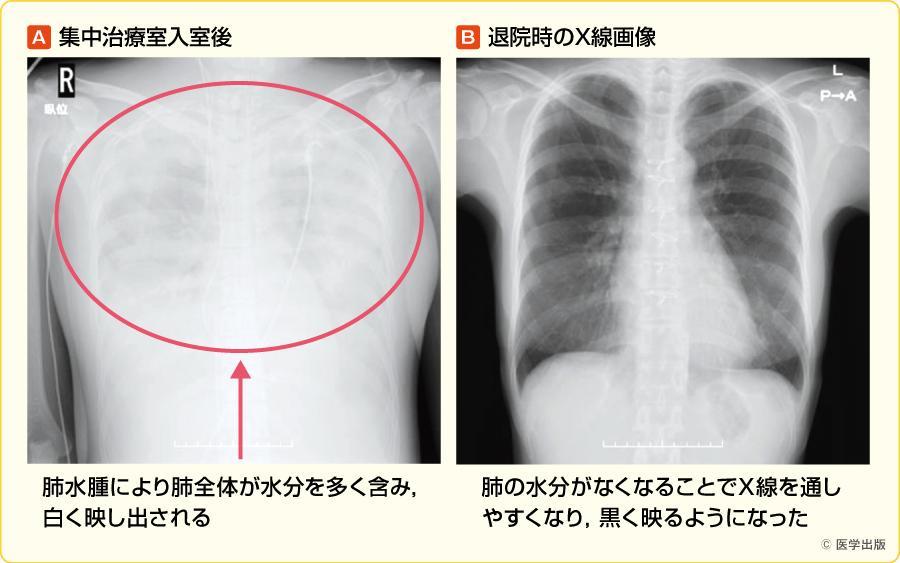 高度な肺水腫をきたした例