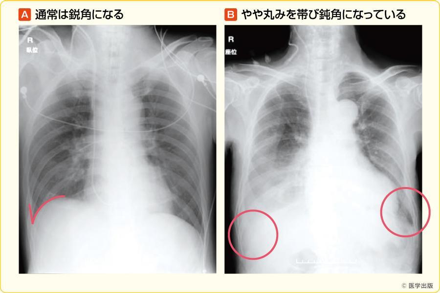 肋骨横隔膜角の確認