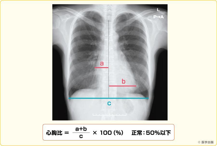心胸比の確認
