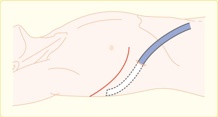 胸腔ドレーンの挿入位置