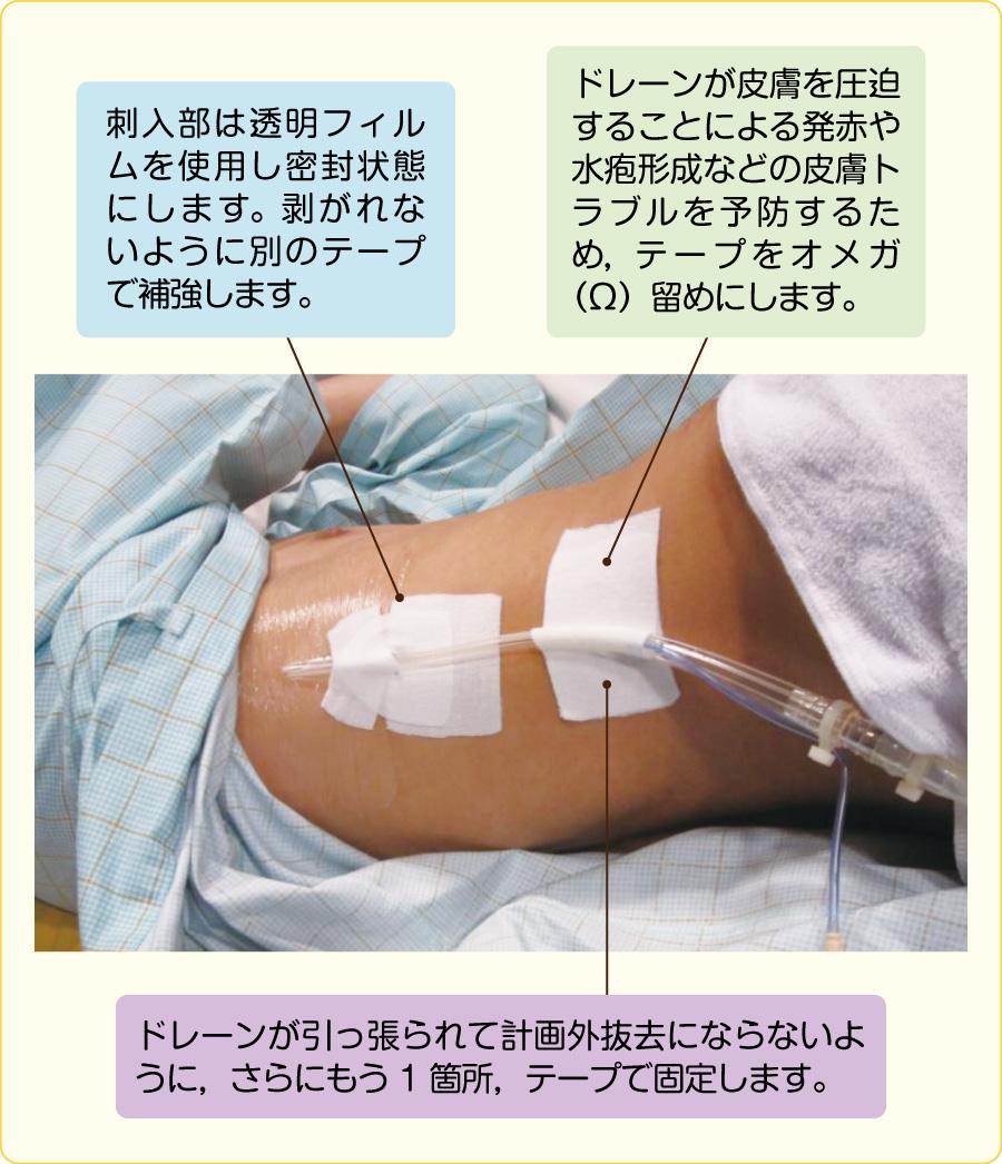 胸腔ドレーンの固定方法