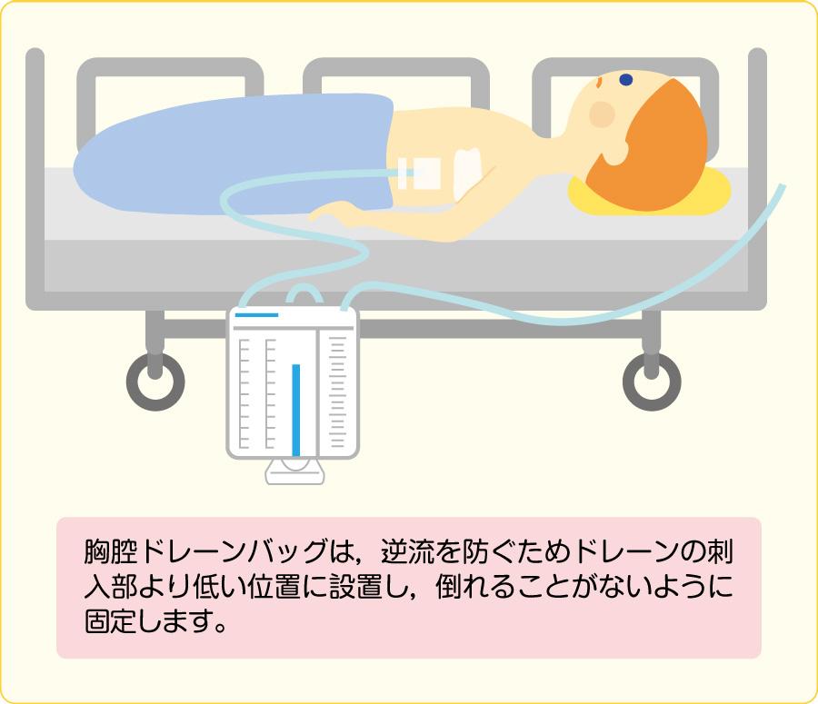 胸腔ドレーンバッグの位置