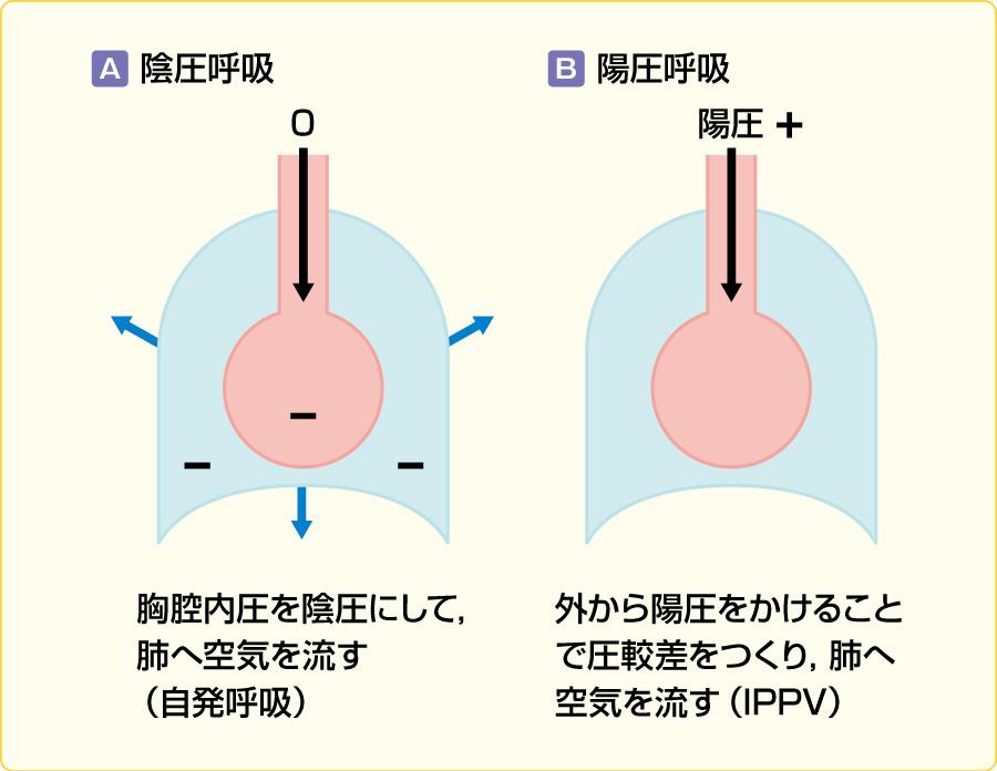 陰圧呼吸と陽圧呼吸