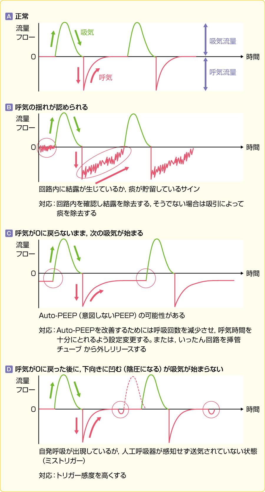 注意が必要なグラフィック