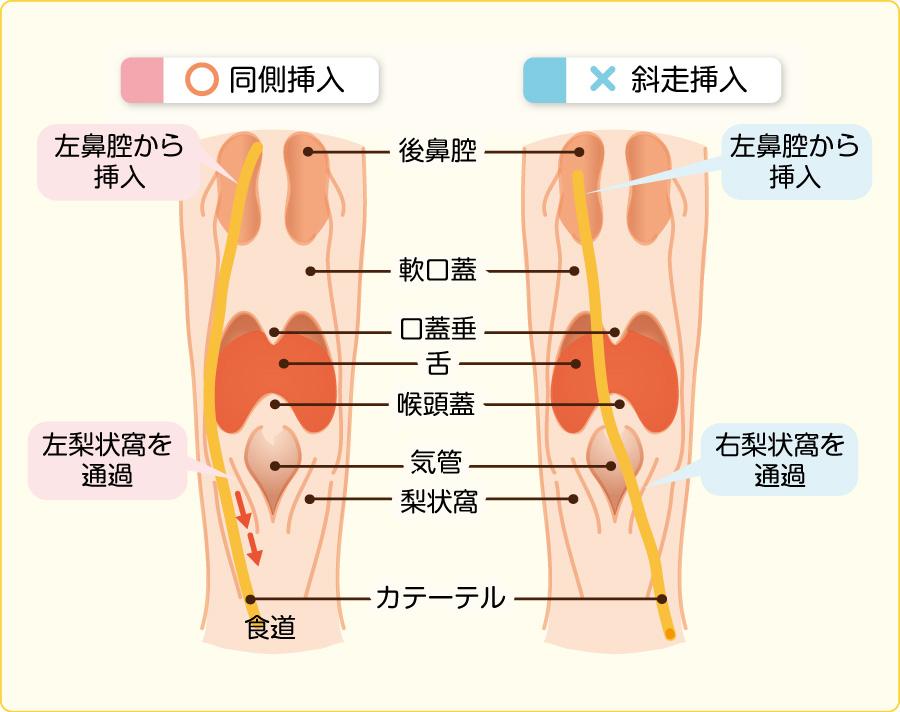 栄養チューブによる嚥下への影響