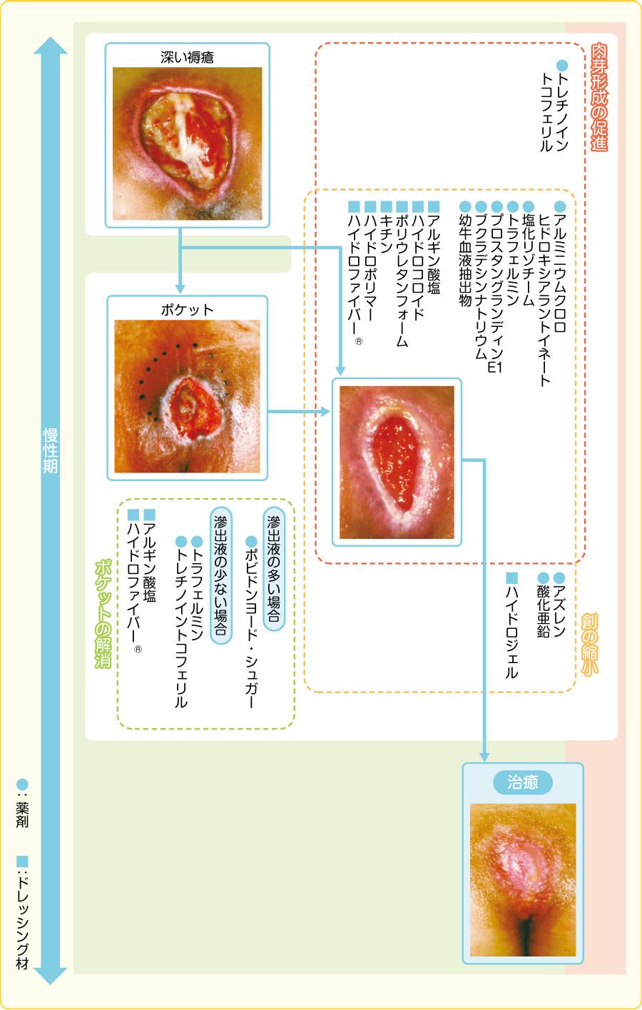 深い褥瘡の肉芽・上皮形成期での治療