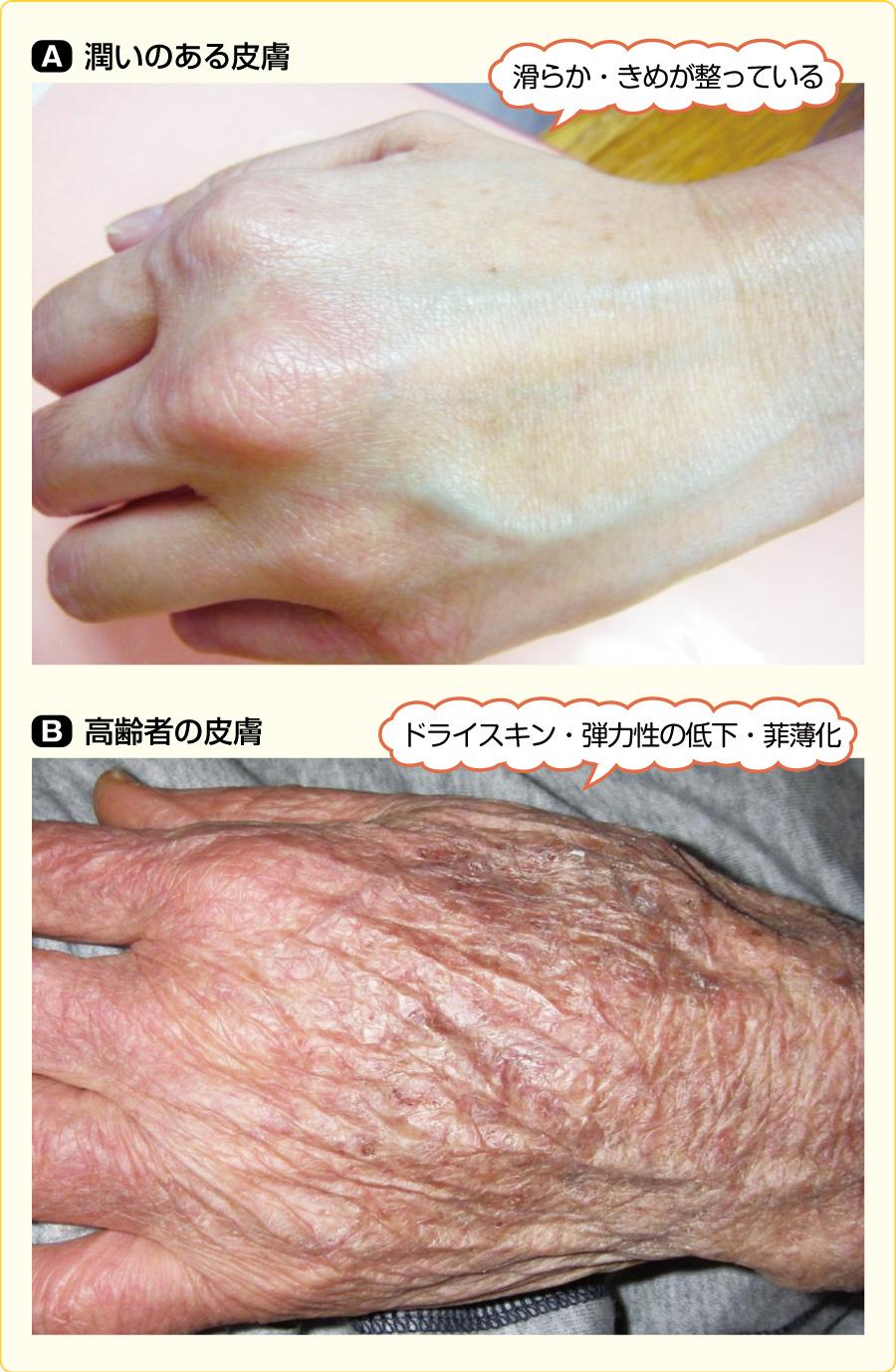 潤いのある皮膚と高齢者の皮膚の比較