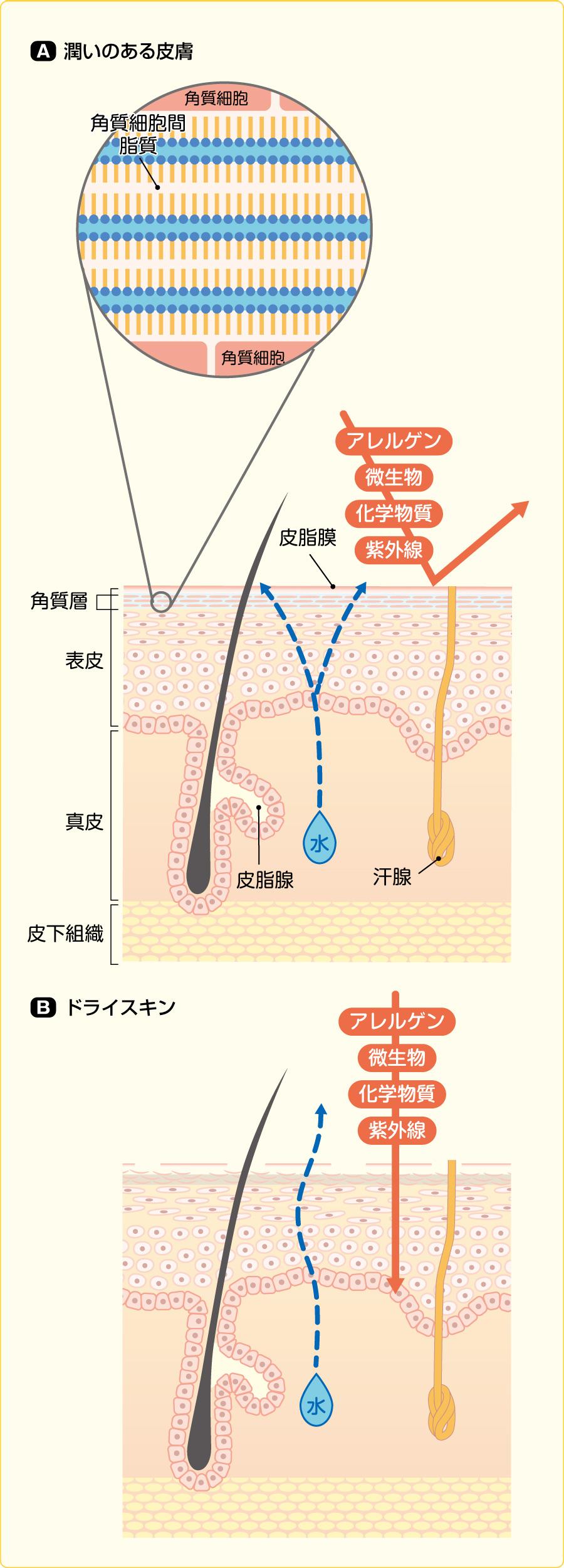 角質バリア機能:潤いのある皮膚とドライスキンの比較