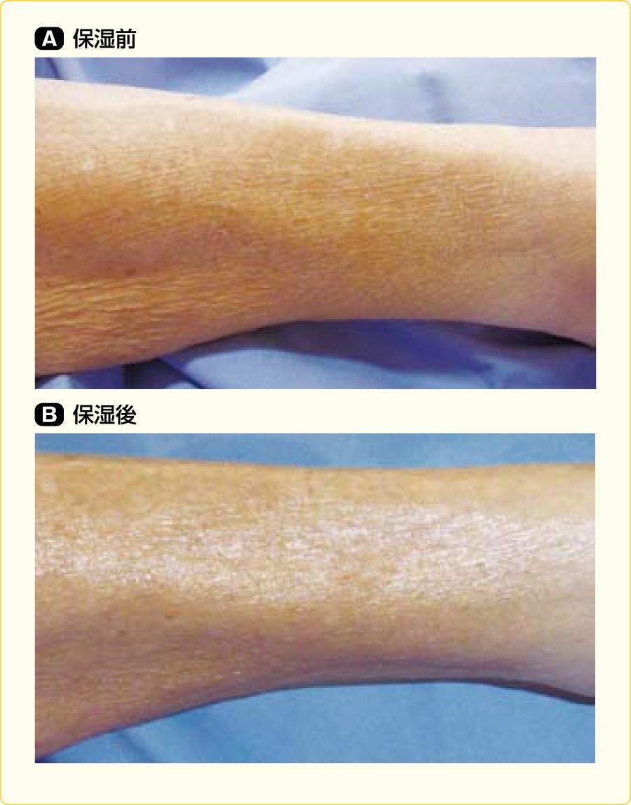 洗浄後の皮膚の保湿