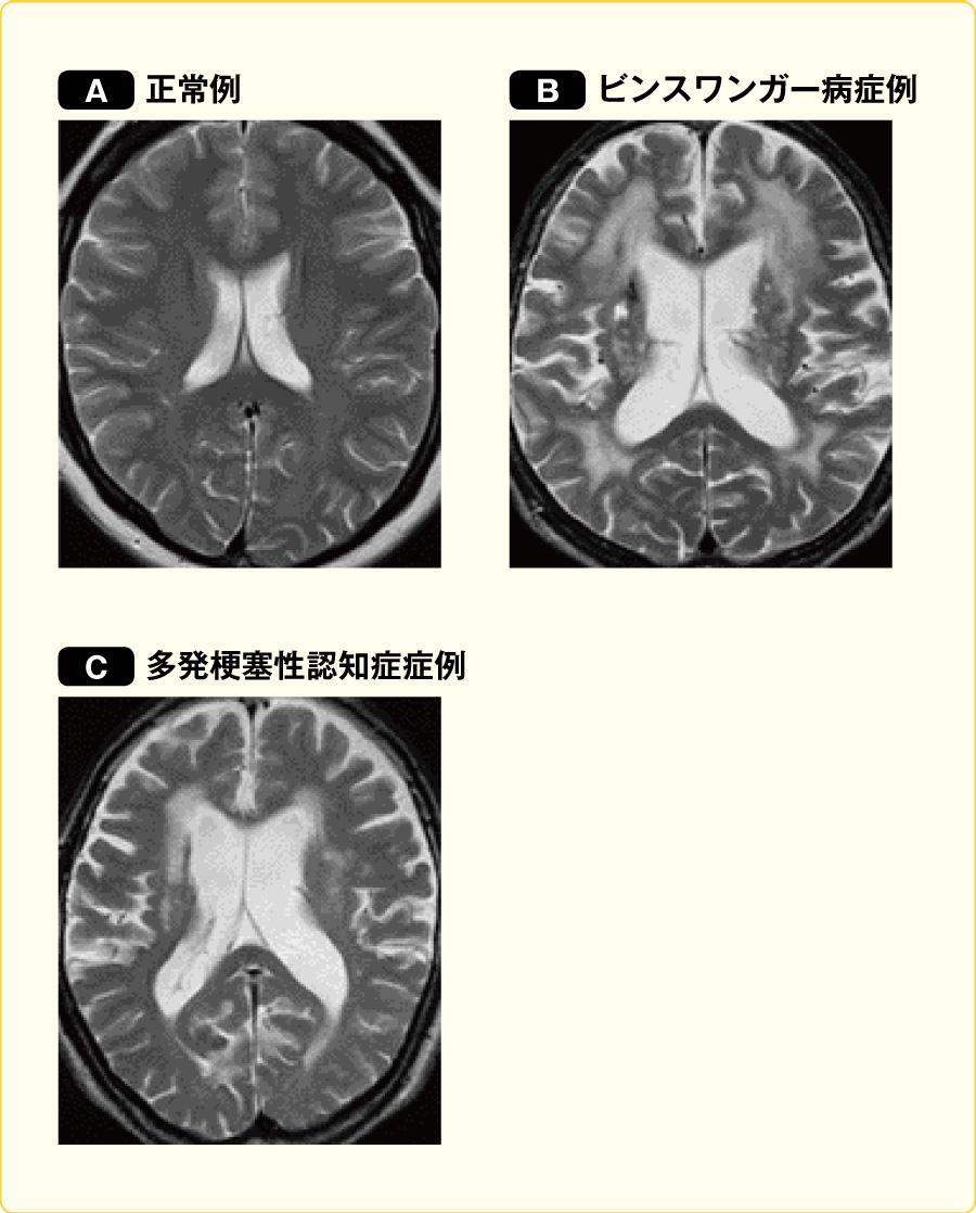 ビンスワンガー病と多発梗塞性認知症のCT像