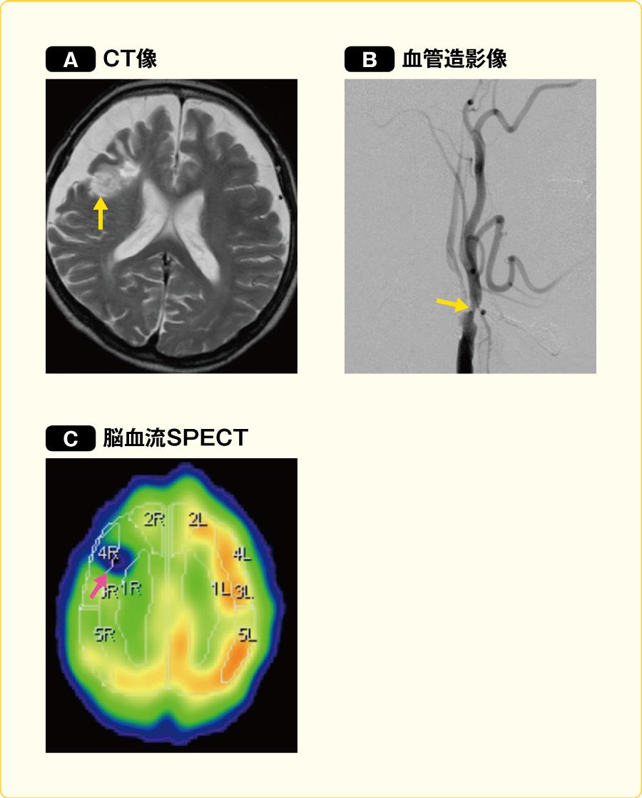 前頭葉優位に散在する脳血流低下部位