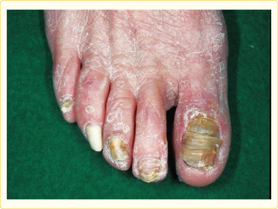 足白癬に続発した爪白癬