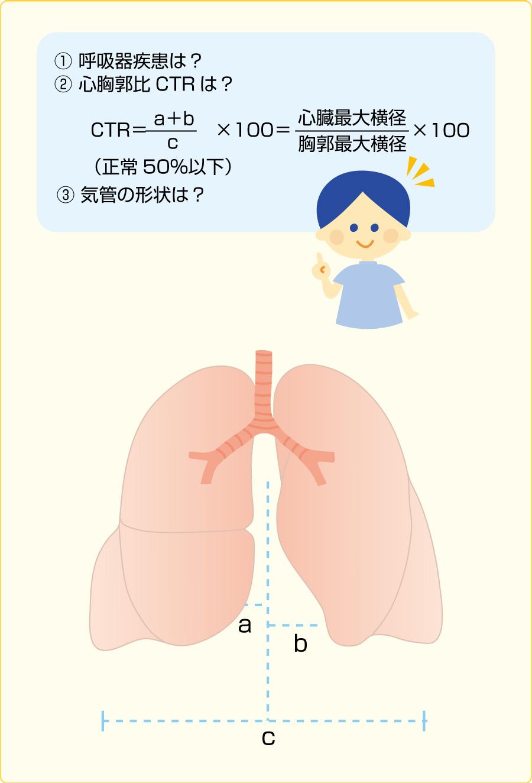 胸部X線のチェックするポイント