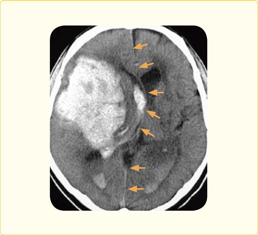切迫脳ヘルニアをきたし生命の危険のある脳出血患者の頭部CT