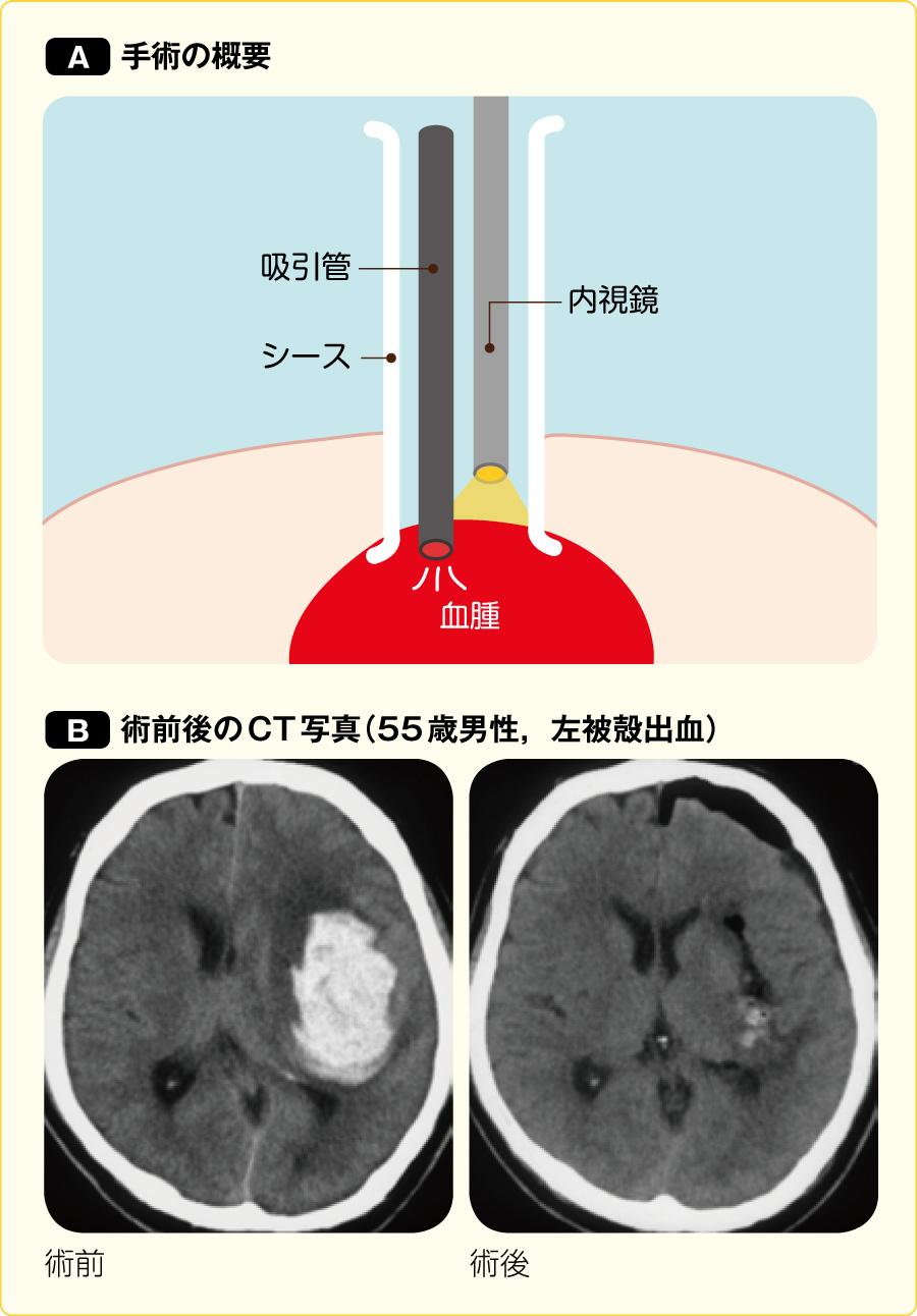 内視鏡下血腫除去術