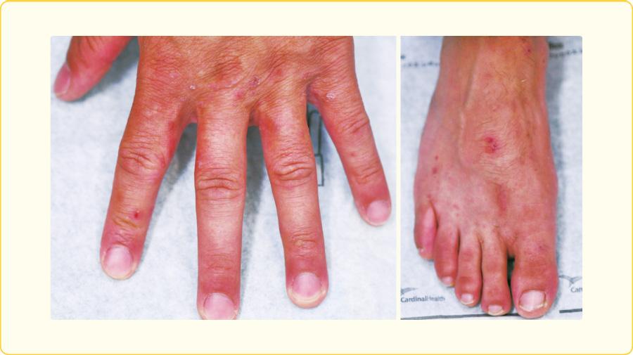 指間,指側縁,足背の丘疹と疥癬トンネル